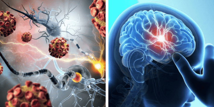 Аутоиммунный энцефалит: причины, симптомы, лечение