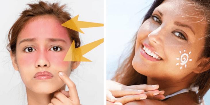 Как солнце может влиять на кожные заболевания