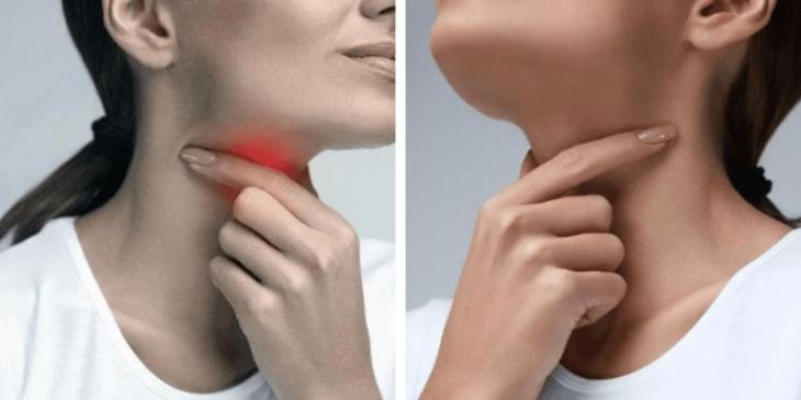 Почему может возникать дискомфорт или боль во время глотания